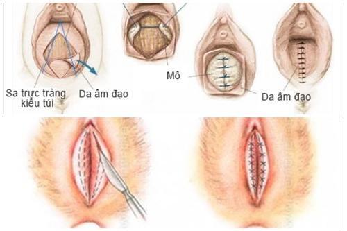 Hình ảnh phẫu thuật thu hẹp vùng kín